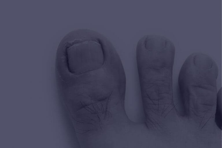 Ingrown Toenail.A condition in which the corner or side of a toenail grows into the flesh . Best podiatrist Gold coast. Bulk Billing Podiatry. Medicare Podiatry. Ace Health Centre.
