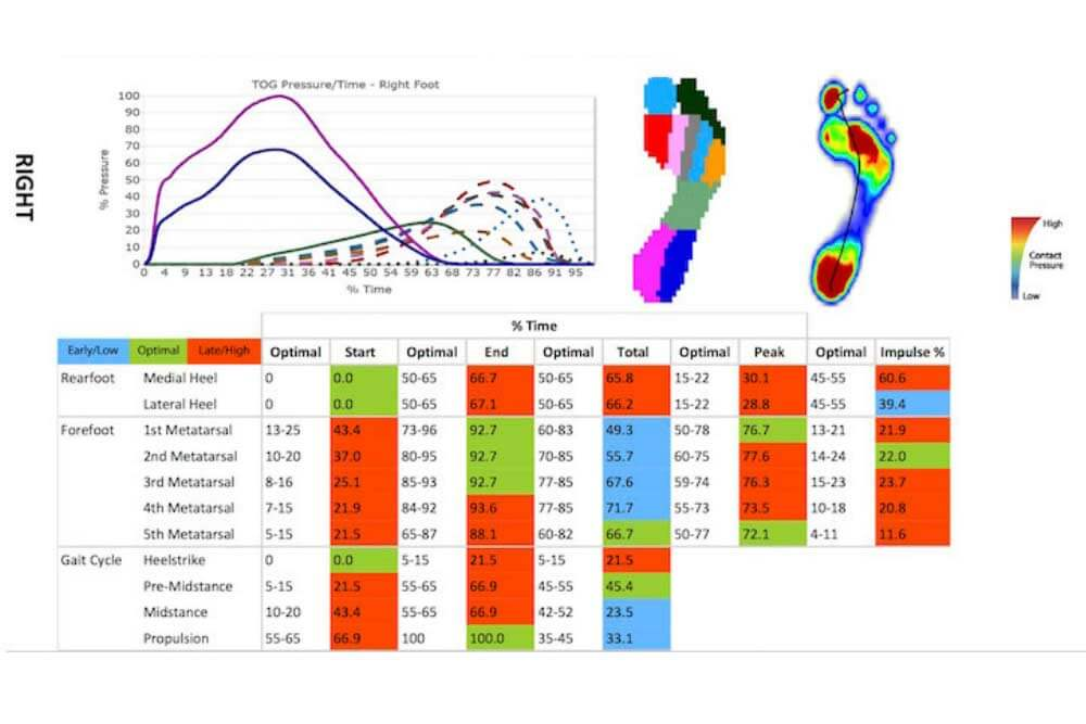 Gait Analysis Personal Report. Feet Analysis. Digital format to compare & review. 3D orthotics. Custom made orthotics. Best in Australia. Best orthotics in Gold Coast. Ace Health Centre.