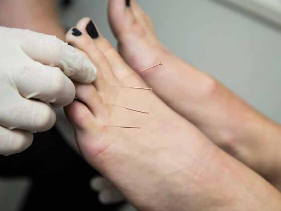 ACE dry needling treatment