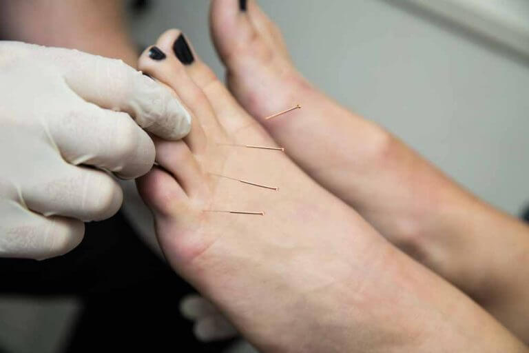 ACE dry needling treatment