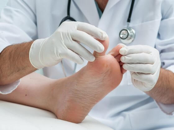Podiatry Bulk billing explained - ACE Health Centre
