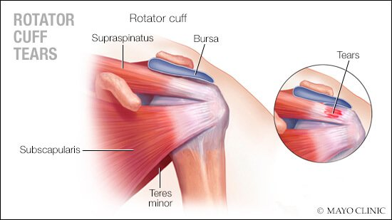 Rotator Cuff Guide For The Gold Coast