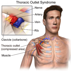 Neck pain caused by Thoracic outlet syndrome
