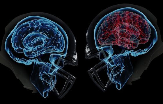 Concussion physio on the Gold Coast