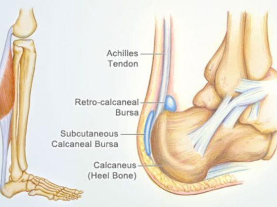 Achilles Tendon Pain - Gold coast